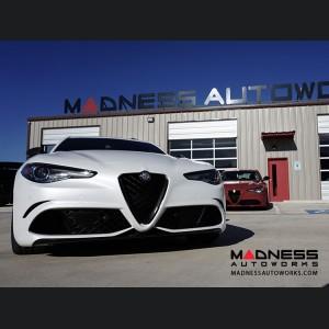 Alfa Romeo Giulia Front V Shield Grill Frame - Gloss Carbon Fiber - Quadrifoglio