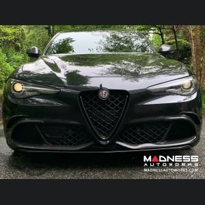 Alfa Romeo Giulia Front V Shield Grill Frame + Emblem Frame Kit - Gloss Carbon Fiber - Quadrifoglio
