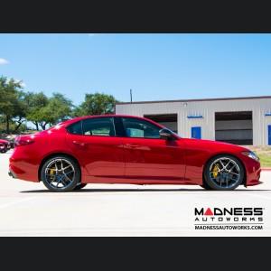 Alfa Romeo Giulia Lowering Springs by MADNESS - Non Quadrifoglio Models